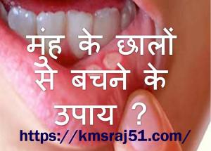 Mouth Ulcers treatment-KMSRAJ51