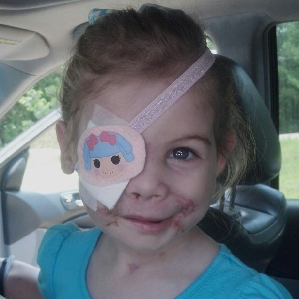 KFC accused of kicking out girl, 3, scarred in pit bullattack