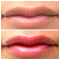 Lips care - kmsraj51