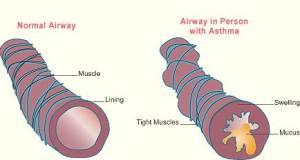 दमा (श्वास रोग ) Asthma
