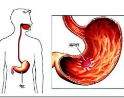 Ulcer-अल्सर